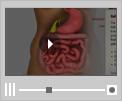 Multimedia Patient Education